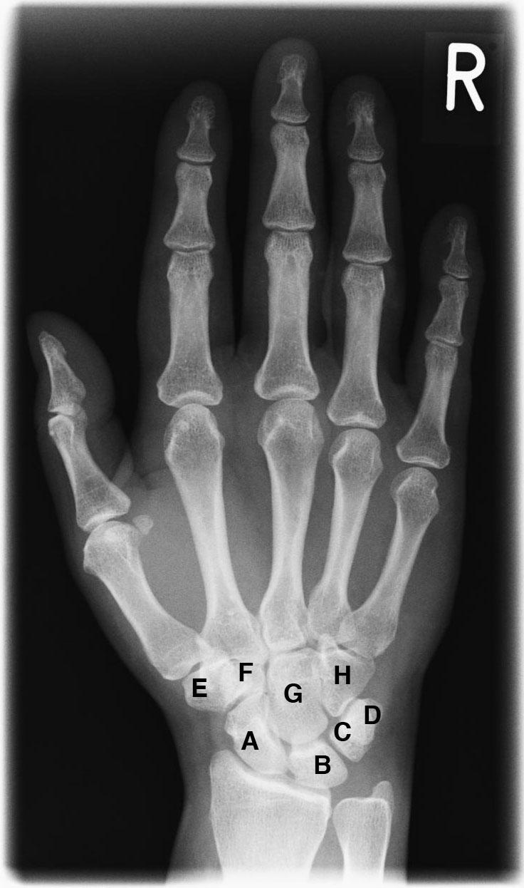 Xray_hand